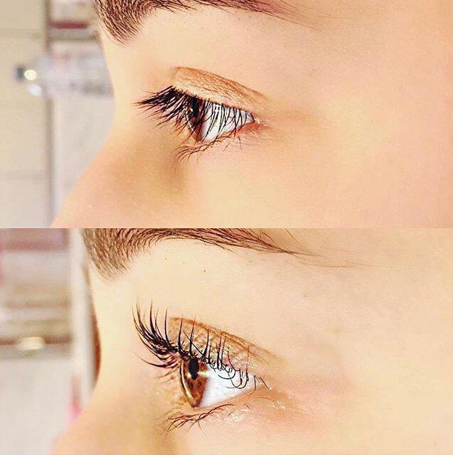 53e126b2aca Eye Treatments | Beauty Source at the Barn